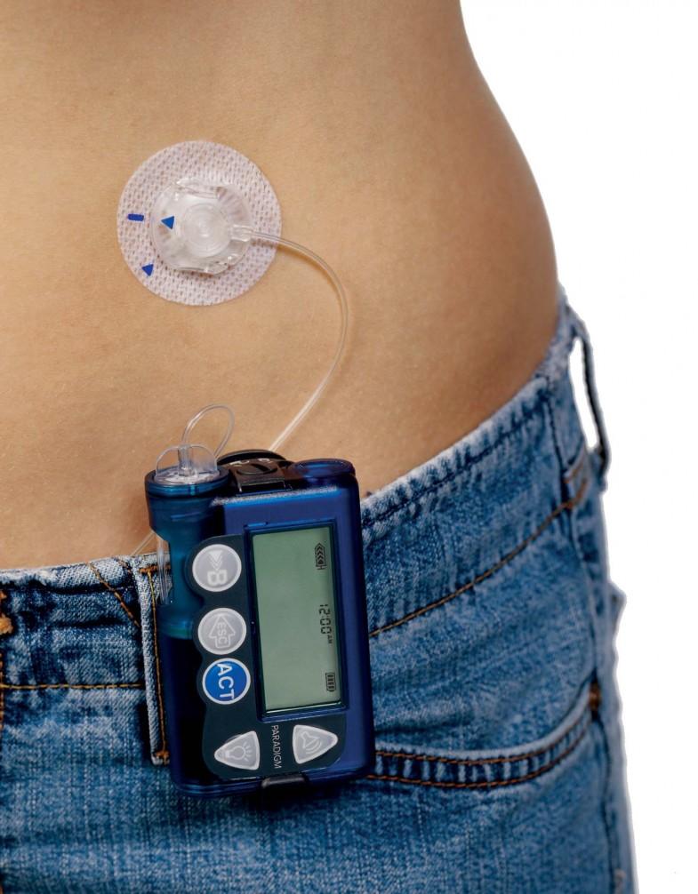 Photo:inputdiabetes.org.uk