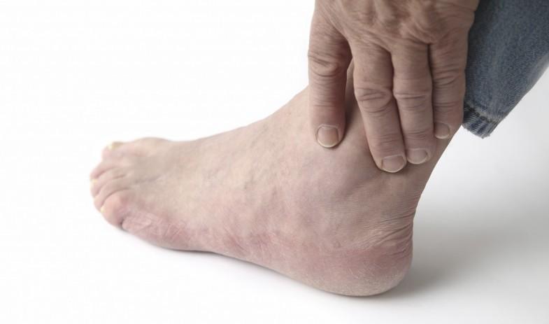 n-gout-a-20150206