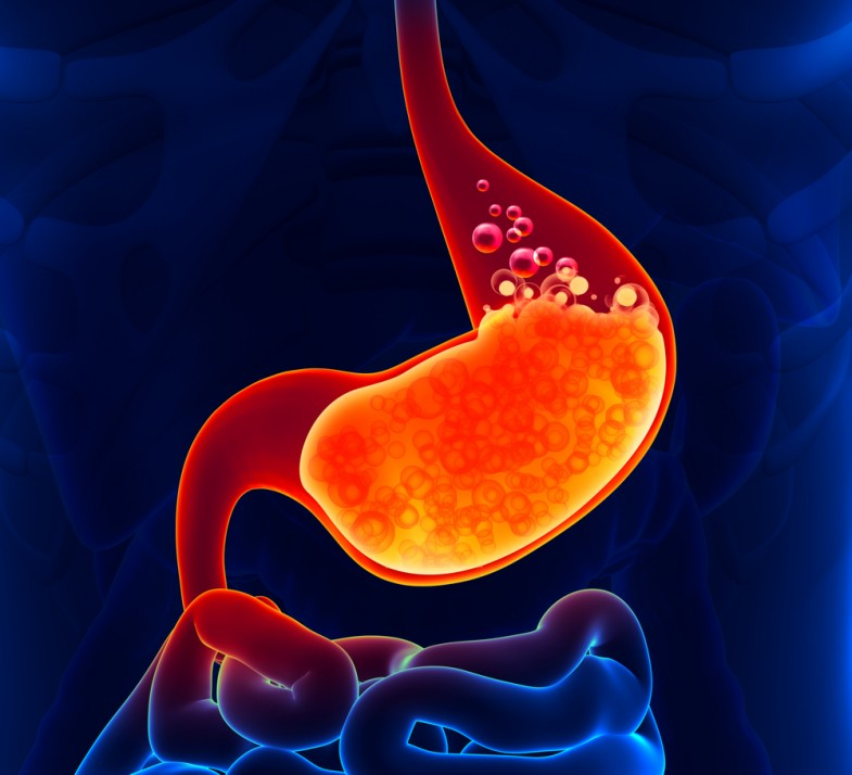 acid-reflux-caused-by-late-night-eating