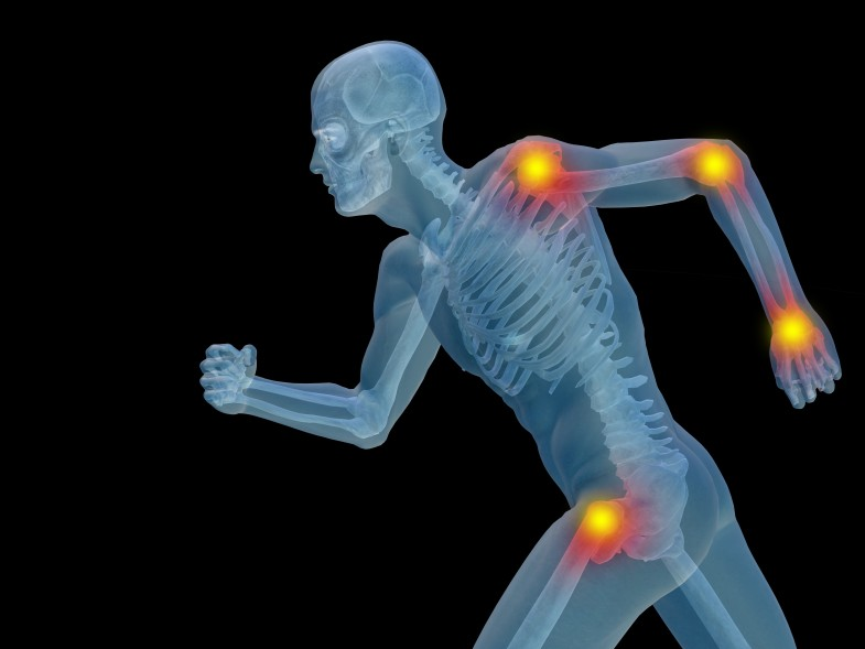 Arthritis-2